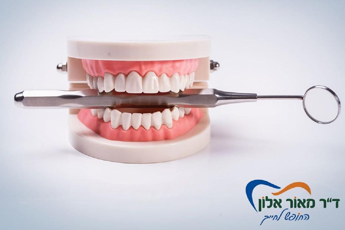 רופא שיניים פרטי באשדוד